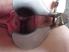Speculum open vagina stretched